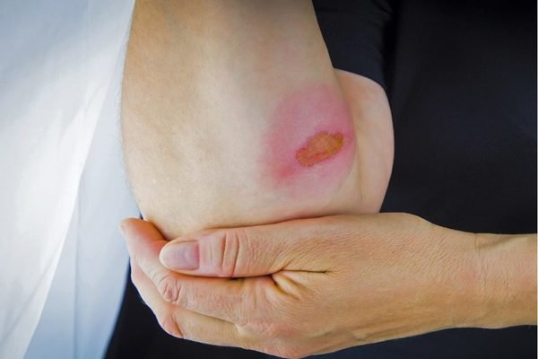 What you need to do when experience airbag explosion and get burned